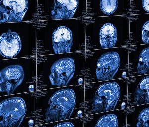Head and Traumatic Brain Injuries